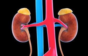 Kidney Cancer Treatment Guide